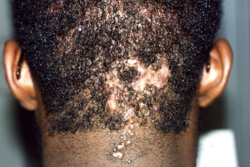 Viral Skin Infections in Adolescents – My Spots and Me
